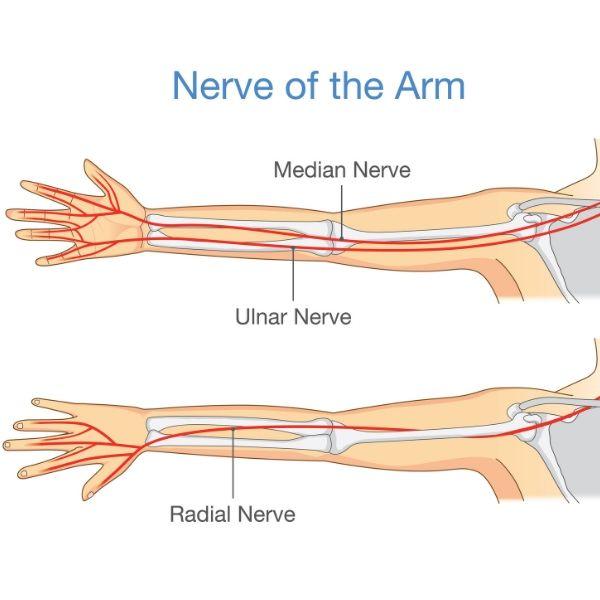 radial tunnel syndrome |posterior interosseus nerve syndrome